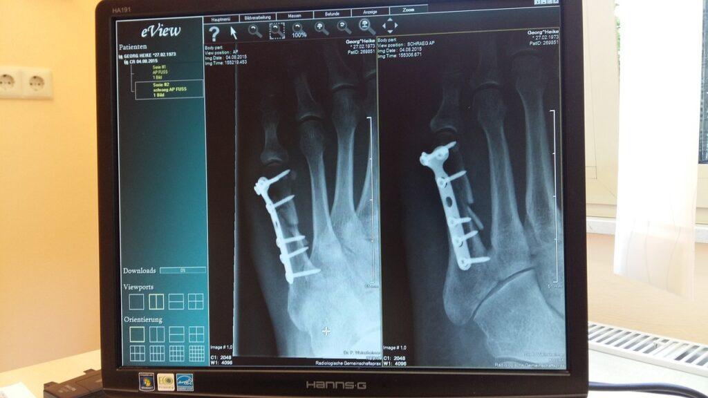 x-ray-924237_1280